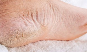 5 Effective Home Remedies For Dry Feet