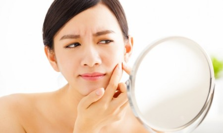 Best Tips For Acne Scars Removal