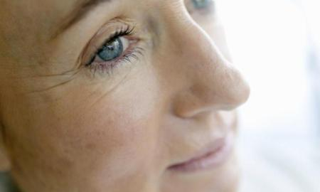Simple Home Remedies For Wrinkles Under Eyes