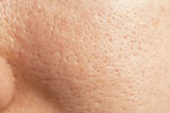 Reduce Open Pores for lime