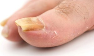 Treatment Of Fungal Toenail Infection With Home Remedies