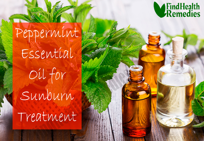 peppermint-essential-oil-for-sunburn-treatment