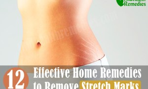 12-effective-natural-home-remedies-to-remove-stretch-marks