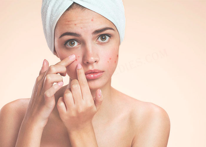 Carom Seeds for Acne
