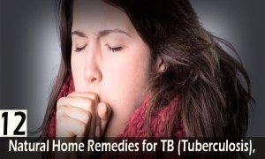 12-Natural-Home-Remedies-for-TB-(Tuberculosis),-Symptoms,-Causes-and-Prevention-Tips