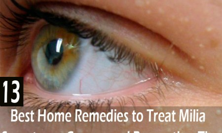 13-Best-Home-Remedies-to-Treat-Milia---Symptoms,-Causes-and-Prevention-Tips