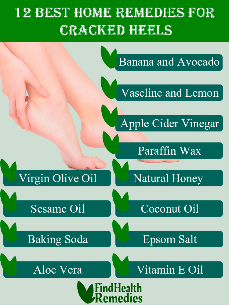 Top Natural Home Remedies for Dry and Cracked Feet