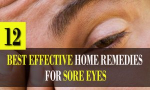 12-Best-Effective-Home-Remedies-for-Sore-Eyes