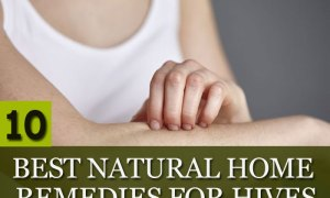 Best-Natural-Home-Remedies-for-Hives