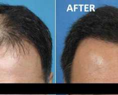 Stem cell Hair Treatment