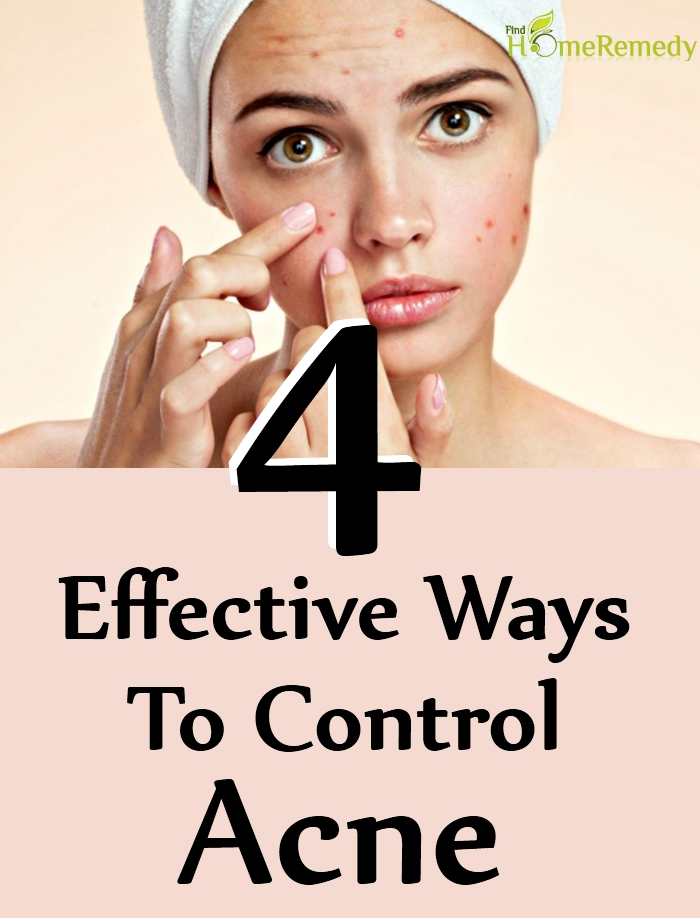 4 Effective Ways To Control Acne