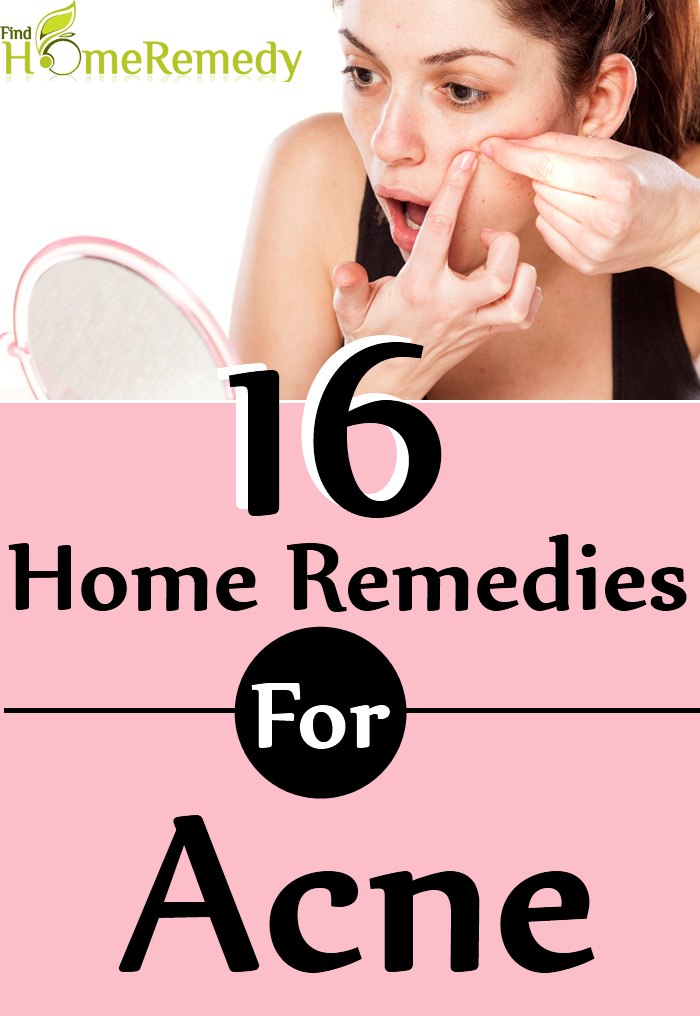 Home Remedies To Cure Acne Eruptions