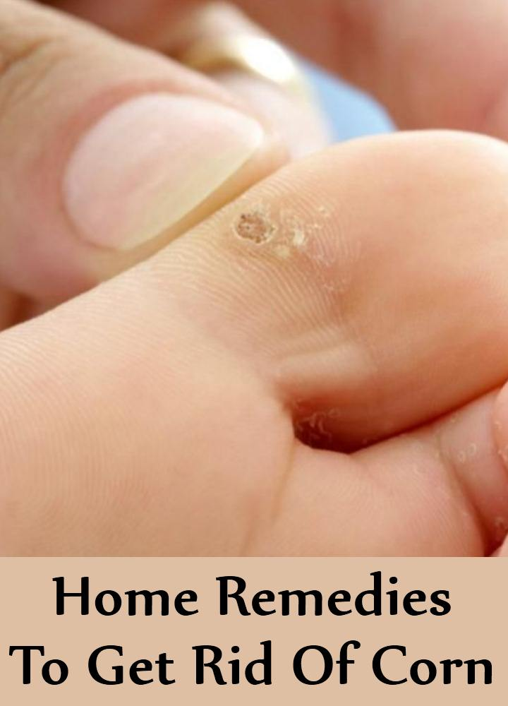 Home Remedies To Get Rid Of Corn