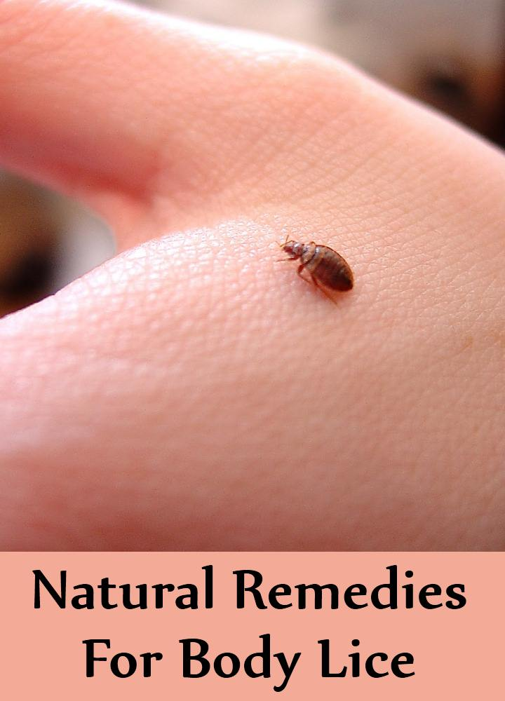 Natural Remedies For Hair Lice