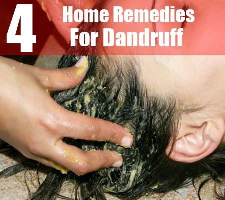 4 Simple Home Remedies For Dandruff