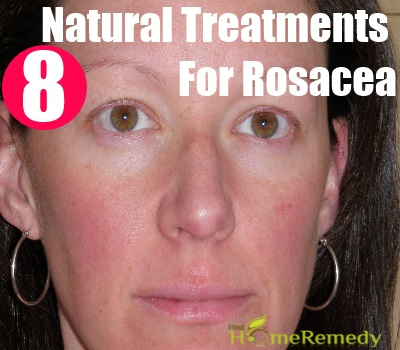 8 Remarkable Natural Treatments For Rosacea