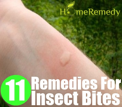 Insect Bites