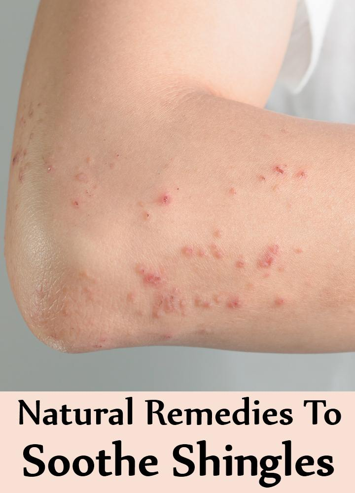Natural Remedies To Soothe Shingles