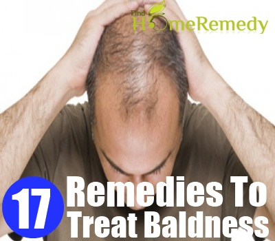 Treat Baldness