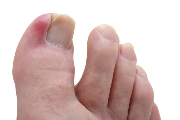 Treatment Ingrown Toenail