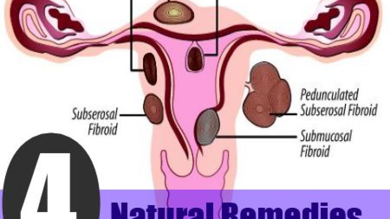 4 Effective Natural Remedies To Fibroids - How To Get Rid Of