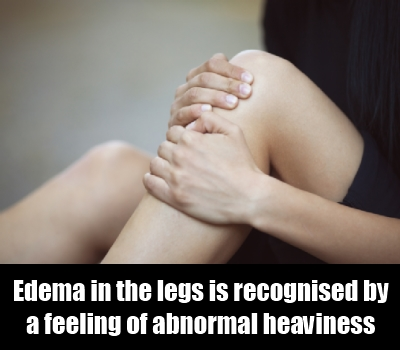 Feeling of Heaviness in the Legs