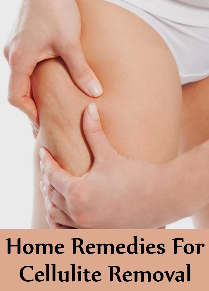 Home Remedies For Cellulite Removal