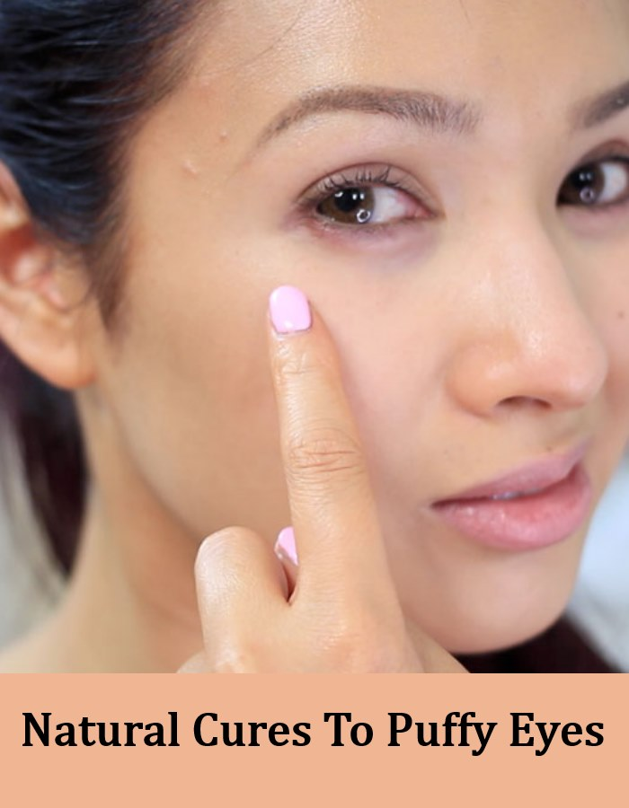 7 Natural Cures To Puffy Eyes