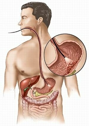 Home Remedies For Stomach Gas