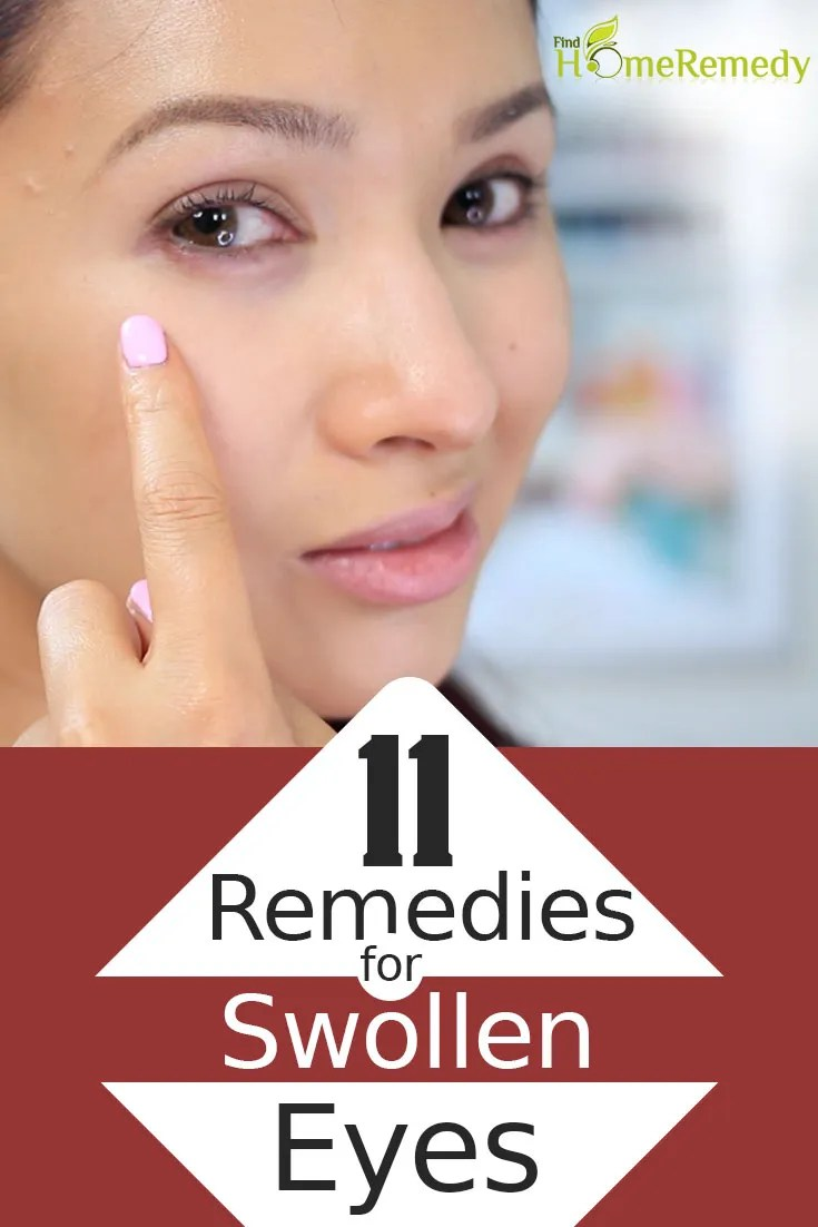 Cure Swollen Eyes Naturally