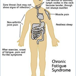 Cure Chronic Fatigue Syndrome
