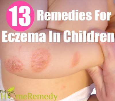 Eczema In Children