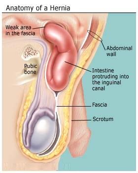 Cure hernia