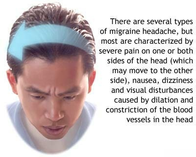 Cure Migraine Headaches