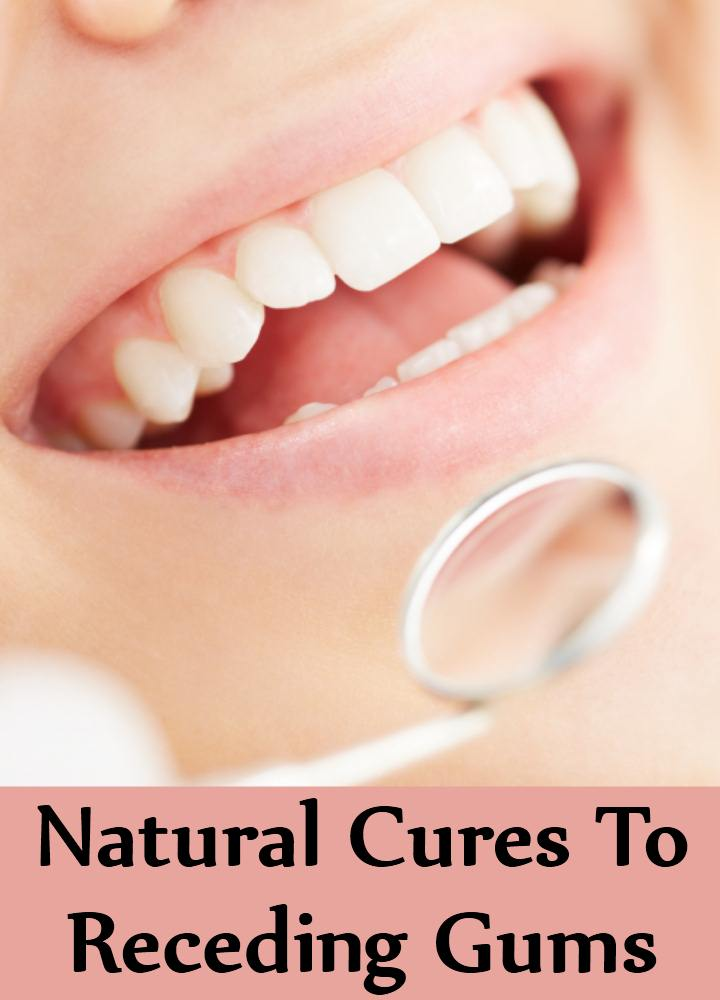 Natural Cures To Receding Gums