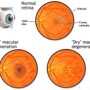Cure Macular Degeneration