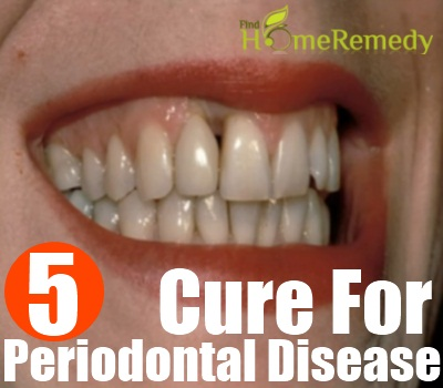 Natural Cure For Periodontal Disease - How To Cure Periodontal