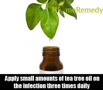 Natural Cure For MRSA - How To Cure Methicillin-Resistant