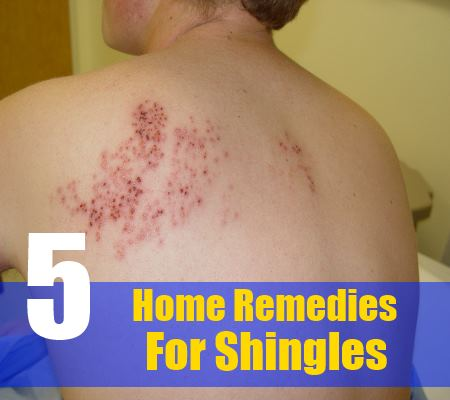 5 Home Remedies For Shingles