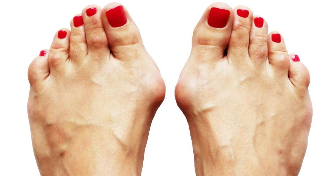 5 Natural Cures To Bunions