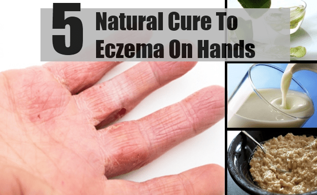 Cure For Eczema On Hands - How To Cure Eczema On Hands Naturally ...