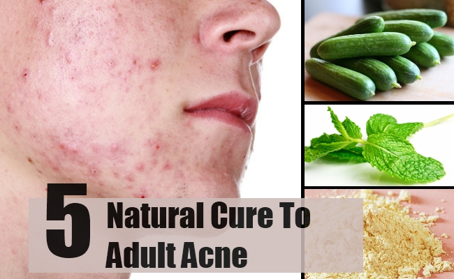 Home Remedy For Adult Acne