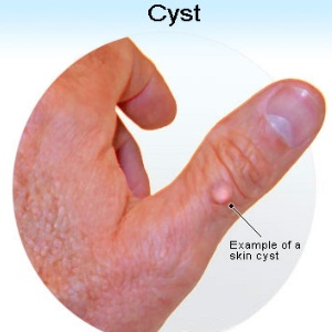 Natural Cure For Cysts