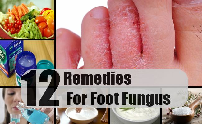 Remedies For Foot Fungus