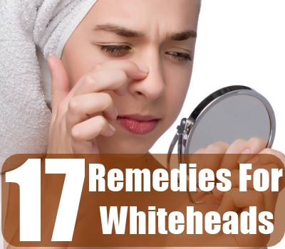Remedies For Whiteheads