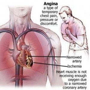How To Treat Angina By Using Vitamins