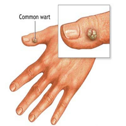EFFECTIVE NATURAL CURES FOR WARTS