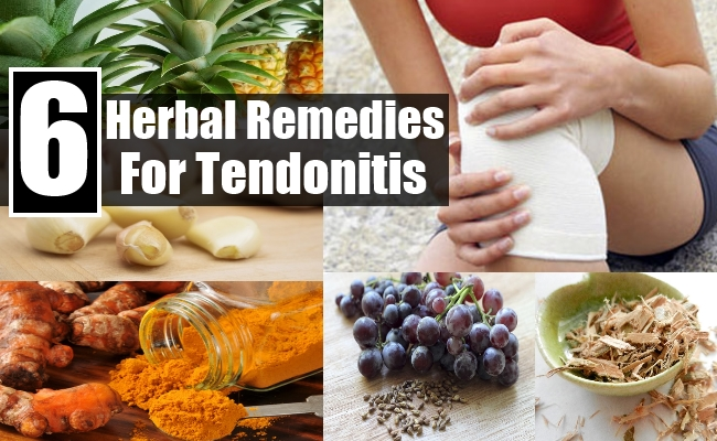 Remedies For Tendonitis