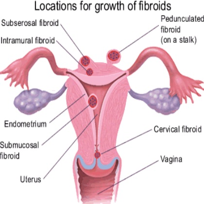 Simple Natural Cure For Fibroids