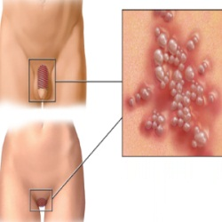 Natural Cure For Herpes Simplex 2